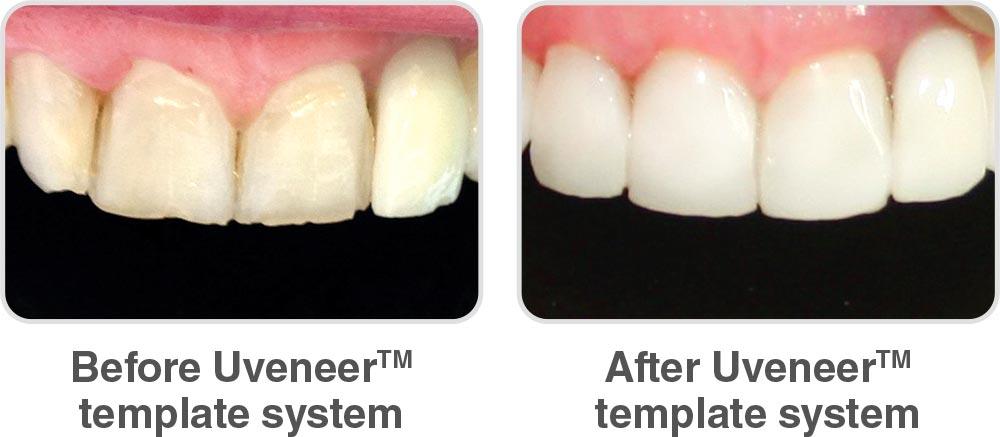قبل و بعد از استفاده از یوونیر